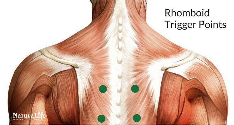rhomboid trigger point diagram